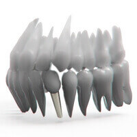 crowns on implants to keep your mouth ans smile healthy
